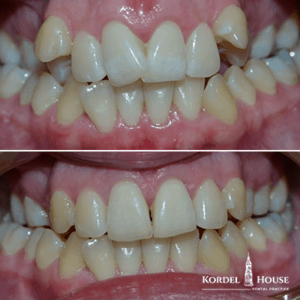 Teeth Straightening Before and After Photos