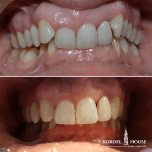 Invisalign® Lincoln Teeth Straightening Before and After Photos