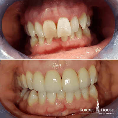 Invisalign® Lincoln Teeth Straightening -Before and After Photos