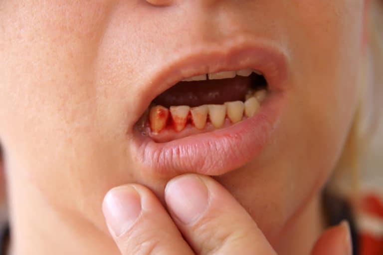 Сейчас вы можете узнать, что означает видеть во сне выплевывать зубы, прочитав ниже бесплатно толкования снов из лучших онлайн сонников дома солнца!