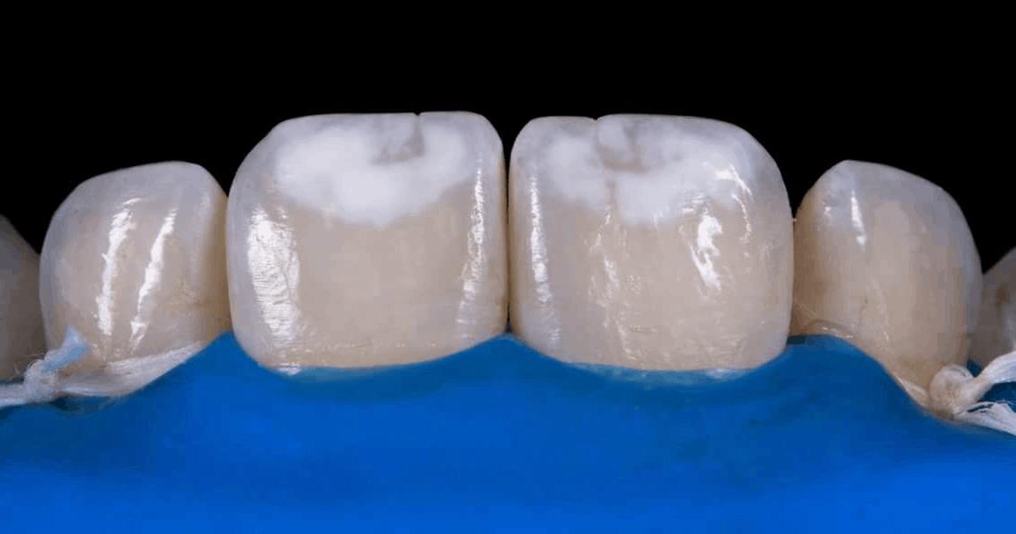 White Spot Lesions