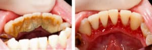 Gum Disease Treatment Lincoln