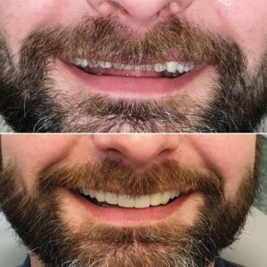 Cosmetic Dentistry in Lincolnshire